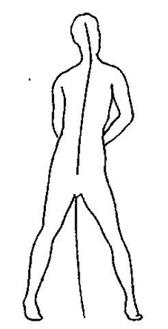 Эти угловатости представляют фрагменты целой личности, типичные для шизоидной или шизофренической личности. Шизо означает расщепление. Если расщепление существует в личности, оно должно также существовать в теле на энергетическом уровне. Человек есть его тело.